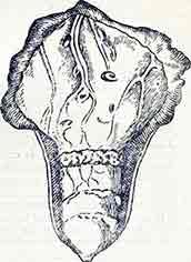 гранулема