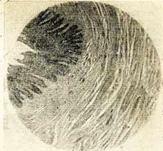 роговой-слой-эпителия-соска